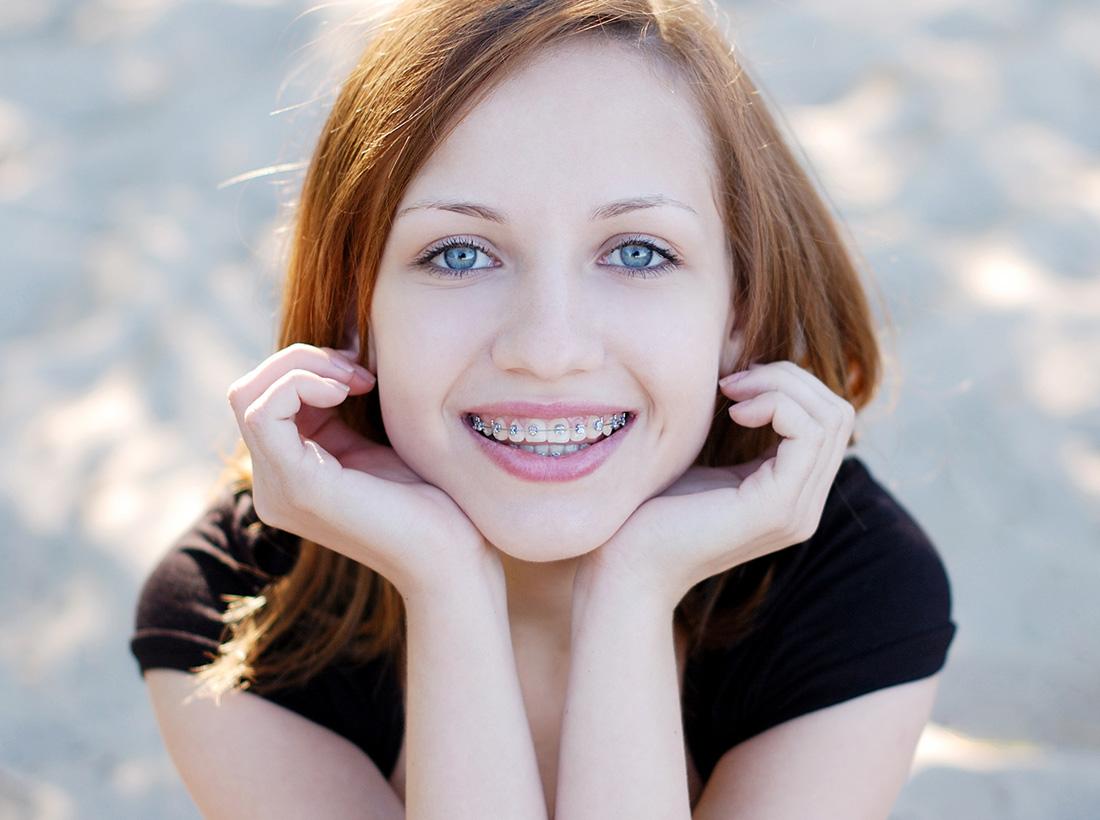 ortodontia-botulinica-botox-tratamento-odontologia-integrada-marconato